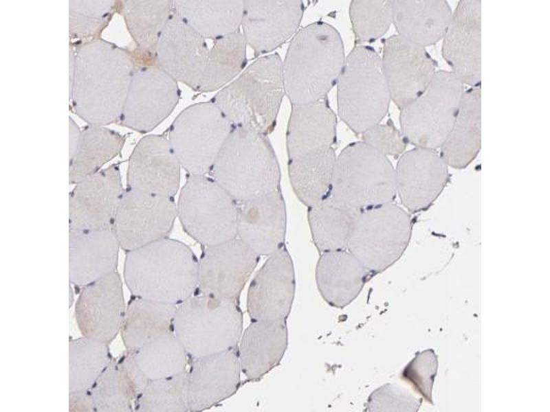 Immunohistochemistry (Paraffin-embedded Sections) (IHC (p)) image for anti-PRA1 Domain Family, Member 2 (PRAF2) antibody (ABIN4327933)