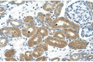 Immunohistochemistry (IHC) image for anti-Forkhead Box P2 (FOXP2) (N-Term) antibody (ABIN2778104)