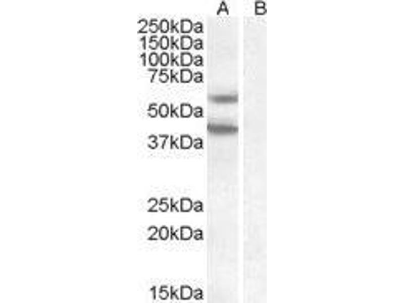 Image no. 1 for Diacylglycerol O-Acyltransferase 2 (DGAT2) peptide (ABIN369303)