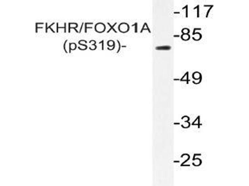 Western Blotting (WB) image for anti-FOXO1 antibody (Forkhead Box O1) (pSer319) (ABIN498786)
