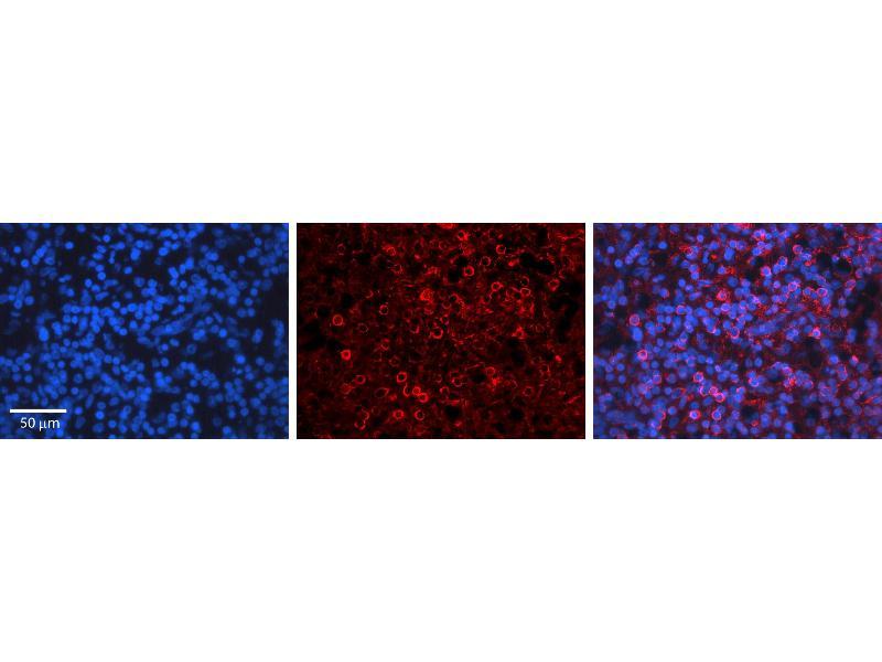 Immunohistochemistry (IHC) image for anti-Cyclin D3 (CCND3) (C-Term) antibody (ABIN2792167)