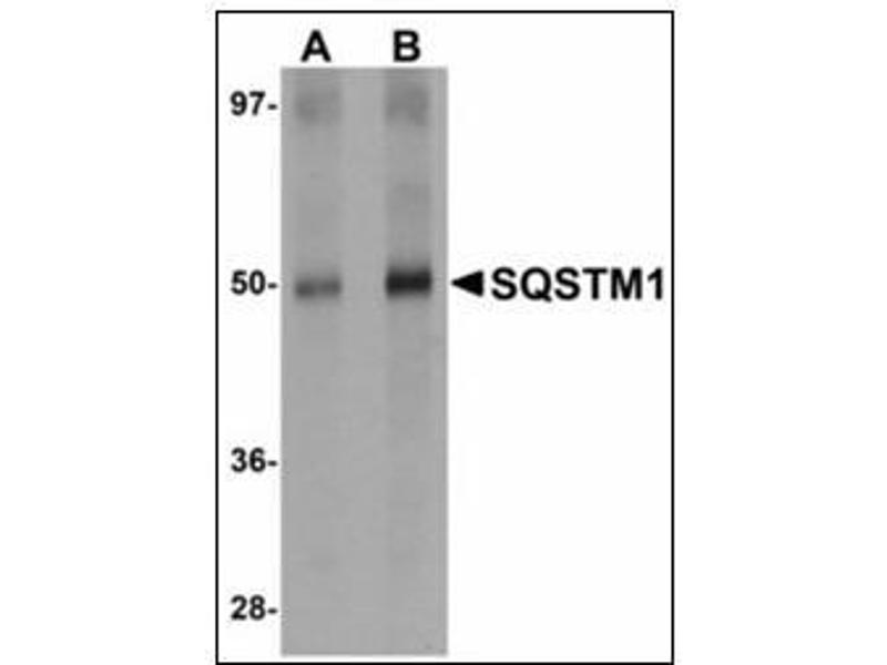 Western Blotting (WB) image for anti-Sequestosome 1 (SQSTM1) (C-Term) antibody (ABIN615711)
