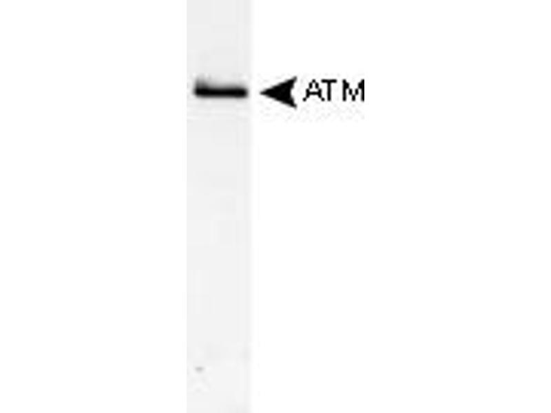 Western Blotting (WB) image for anti-ATM antibody (Ataxia Telangiectasia Mutated) (AA 2550-2600) (ABIN151739)