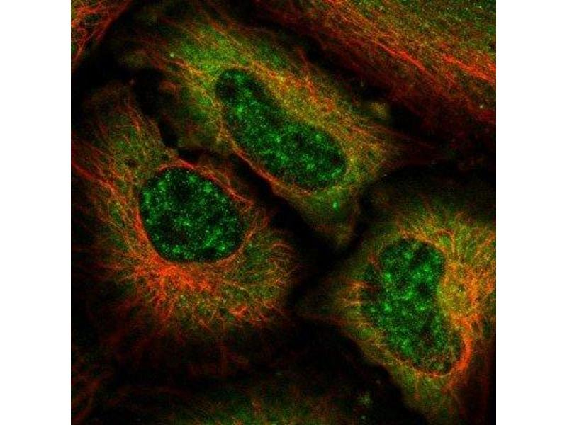 Immunofluorescence (IF) image for anti-MAPK12 antibody (Mitogen-Activated Protein Kinase 12) (ABIN4342707)