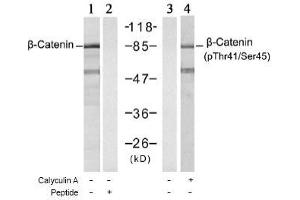anti-Catenin (Cadherin-Associated Protein), beta 1, 88kDa (CTNNB1) (Ser45), (Thr41) antibody