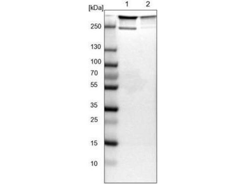 Western Blotting (WB) image for anti-Filamin A, alpha (FLNA) antibody (ABIN4311942)