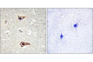 Image no. 2 for anti-Potassium Voltage-Gated Channel, Shaker-Related Subfamily, Member 3 (KCNA3) (AA 101-150), (pTyr135) antibody (ABIN1531682)