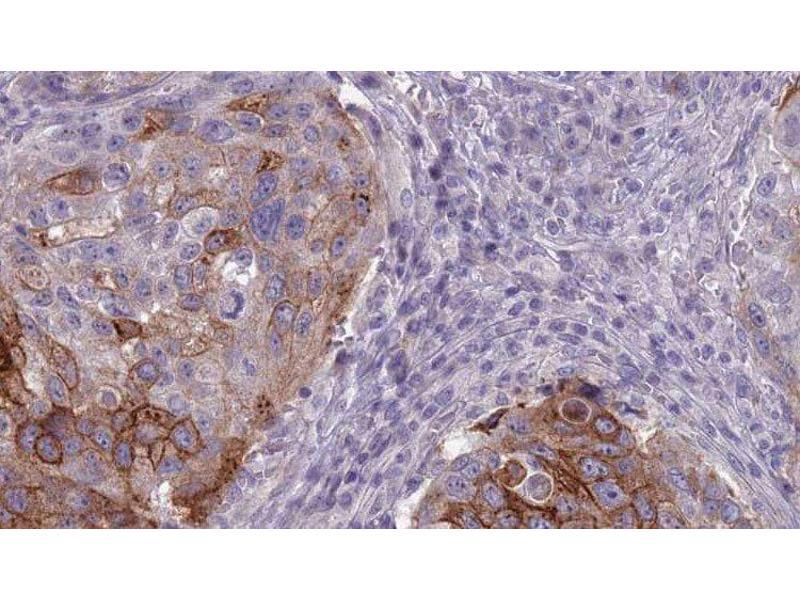 Immunohistochemistry (IHC) image for anti-Brain-Specific Angiogenesis Inhibitor 1 (BAI1) antibody (ABIN6257957)