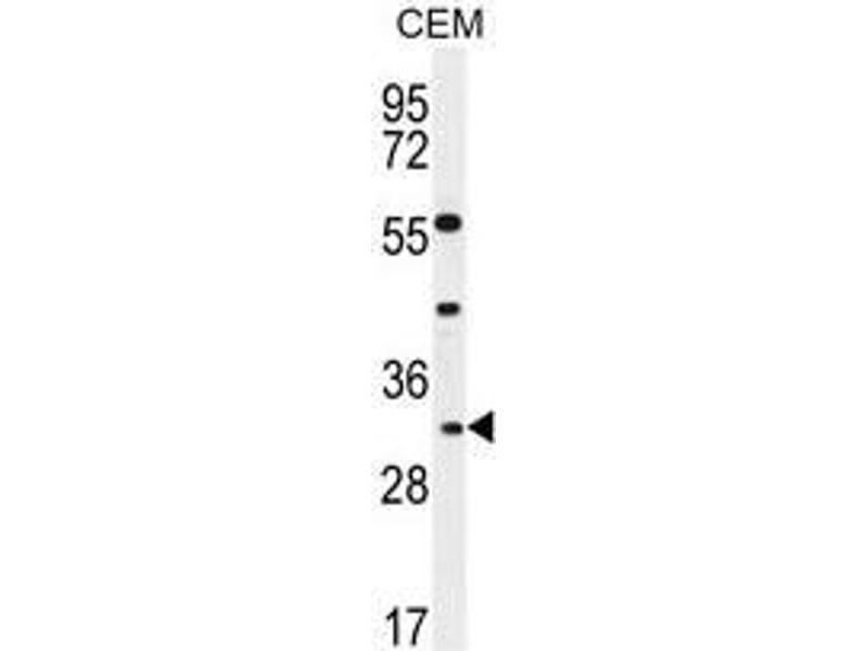 Western Blotting (WB) image for anti-Apolipoprotein F antibody (APOF) (AA 100-128) (ABIN950465)