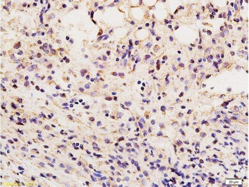 Immunohistochemistry (Paraffin-embedded Sections) (IHC (p)) image for anti-Vimentin antibody (VIM) (AA 416-466) (ABIN672786)