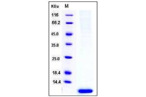 Image no. 1 for S100 Calcium Binding Protein A6 (S100A6) (AA 1-90) protein (His tag) (ABIN2216043)