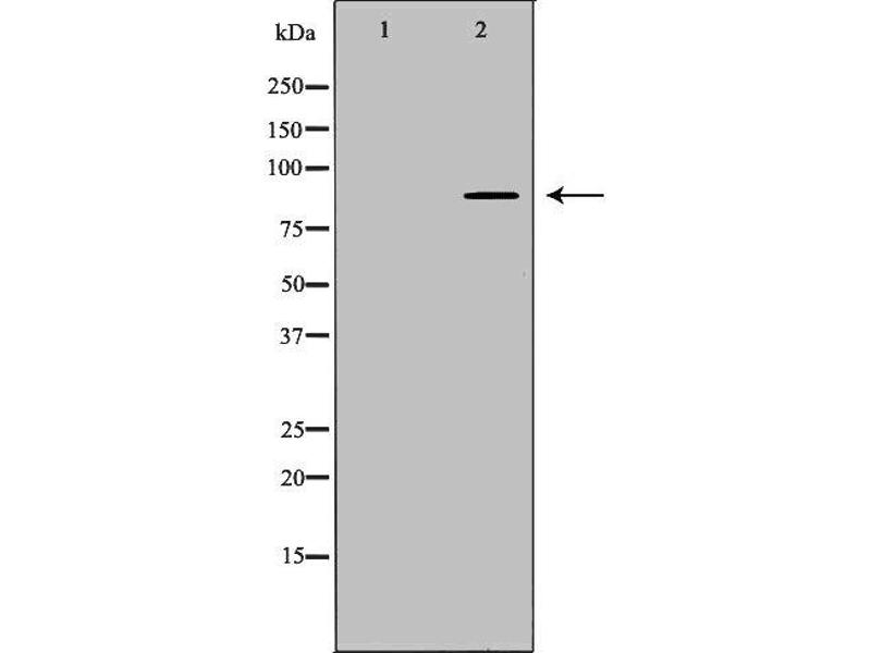 Western Blotting (WB) image for anti-Aryl Hydrocarbon Receptor Nuclear Translocator (ARNT) antibody (ABIN6260045)