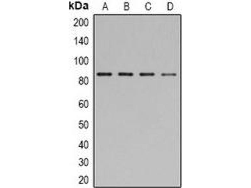 Western Blotting (WB) image for anti-Signal Transducer and Activator of Transcription 1, 91kDa (STAT1) (C-Term), (pTyr701) antibody (ABIN2957762)