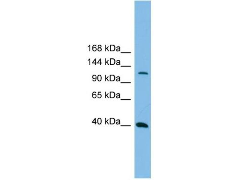 Western Blotting (WB) image for anti-MAP3K14 antibody (Mitogen-Activated Protein Kinase Kinase Kinase 14) (N-Term) (ABIN2775274)