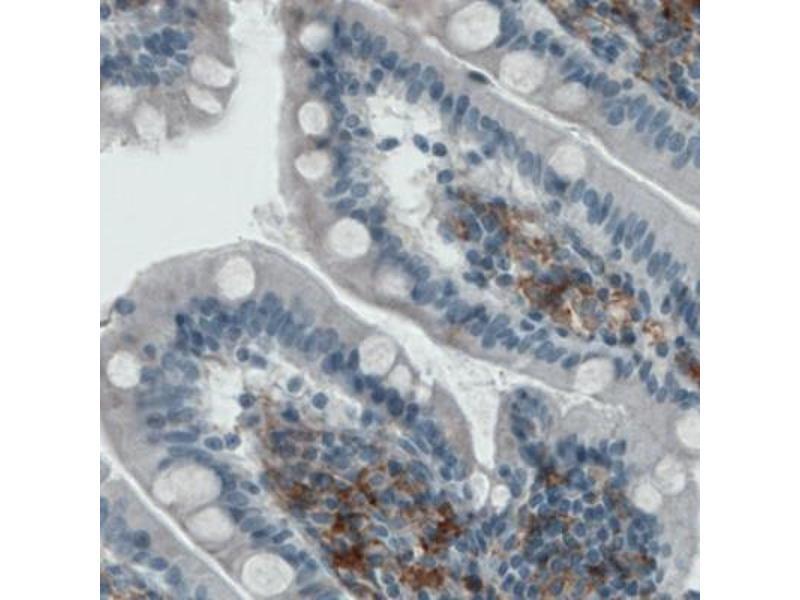 Immunohistochemistry (IHC) image for anti-CD40 Molecule, TNF Receptor Superfamily Member 5 (CD40) antibody (ABIN4293056)