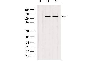 Image no. 1 for anti-Inositol-Trisphosphate 3-Kinase B (ITPKB) antibody (ABIN6258861)