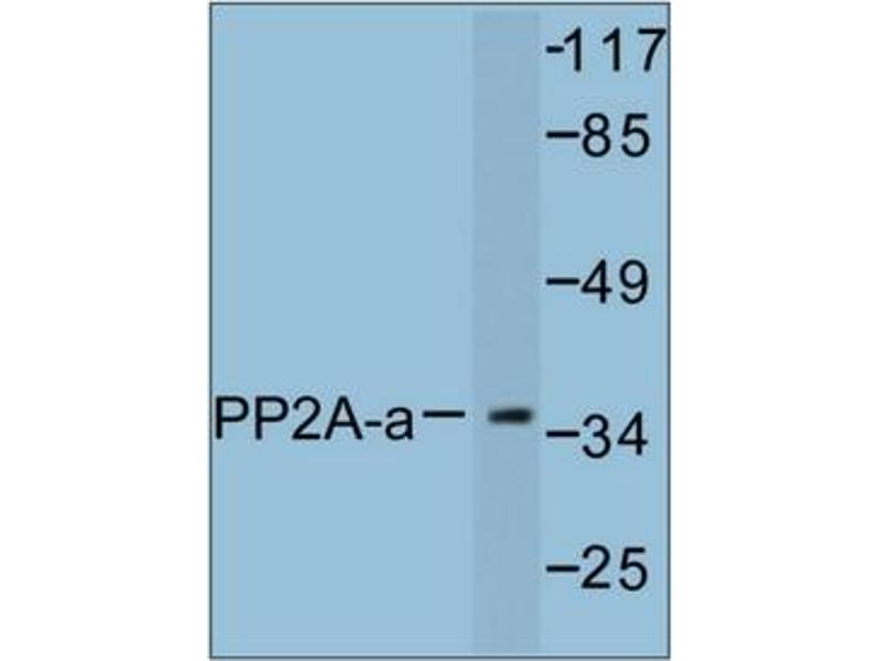 image for anti-Protein Phosphatase 2, Catalytic Subunit, alpha Isozyme (PPP2CA) antibody (ABIN272071)