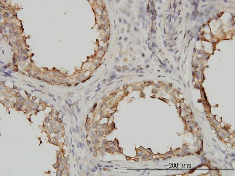 Immunostaining (ISt) image for anti-TUBA4A antibody (Tubulin, alpha 4a) (AA 1-448) (ABIN563289)