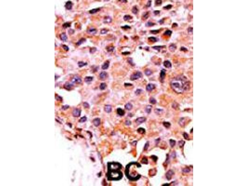 Image no. 1 for anti-Protein Phosphatase 3, Catalytic Subunit, alpha Isoform (PPP3CA) antibody (ABIN543121)