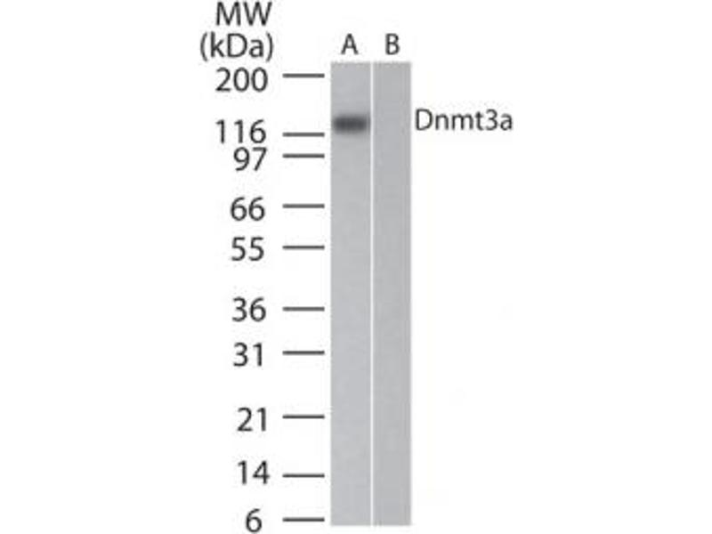 Western Blotting (WB) image for anti-DNA (Cytosine-5-)-Methyltransferase 3 alpha (DNMT3A) antibody (ABIN567869)