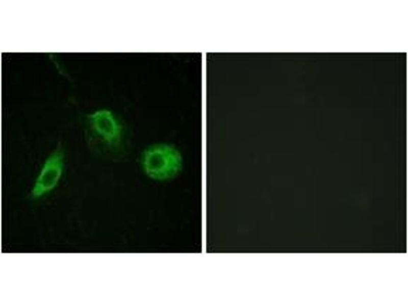 Immunofluorescence (IF) image for anti-Phospholipase C gamma 2 (PLCG2) (pTyr1217), (AA 1186-1235) antibody (ABIN1531375)