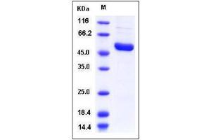 image for Interleukin-1 Receptor-Associated Kinase 4 (IRAK4) (AA 1-460), (full length) (Active) protein (His tag) (ABIN2003326)