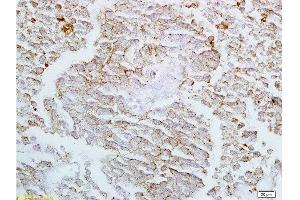 Immunohistochemistry (Paraffin-embedded Sections) (IHC (p)) image for anti-Claudin 4 (CLDN4) (AA 30-80) antibody (ABIN680743)