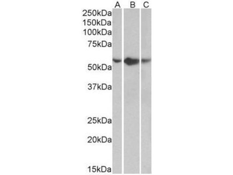 Western Blotting (WB) image for anti-TNFRSF1A antibody (Tumor Necrosis Factor Receptor Superfamily, Member 1A) (Internal Region) (ABIN1105784)