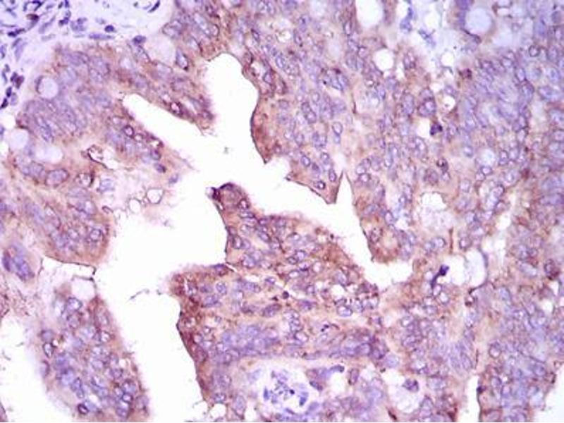 Image no. 2 for anti-Calcium/calmodulin-Dependent Protein Kinase IV (CAMK4) (AA 35-292) antibody (ABIN1098144)