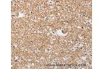 Immunohistochemistry (IHC) image for anti-SOCS2 antibody (Suppressor of Cytokine Signaling 2) (ABIN2428729)