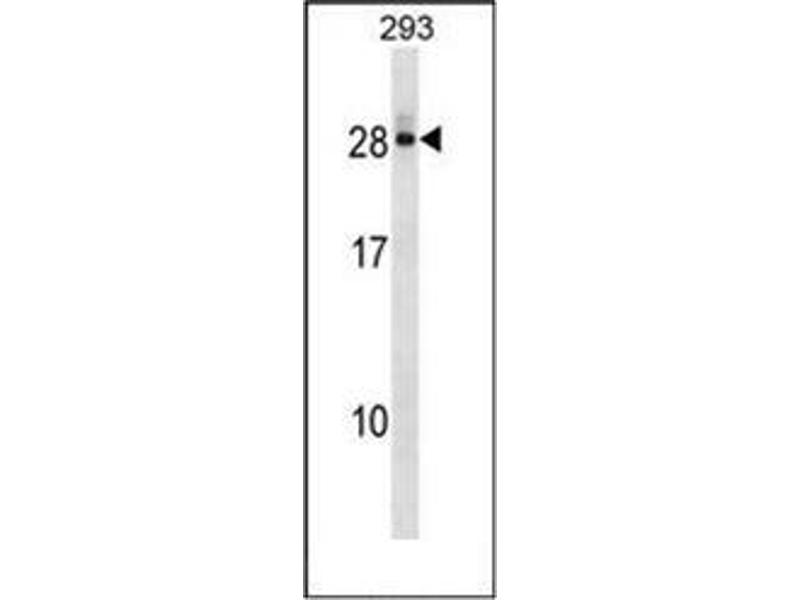Western Blotting (WB) image for anti-DCMP Deaminase (DCTD) (AA 1-30), (N-Term) antibody (ABIN951852)