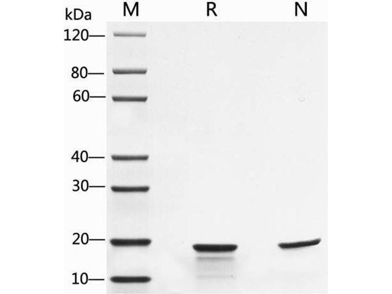 SDS-PAGE (SDS) image for Interleukin 1, beta (IL1B) protein (ABIN988112)