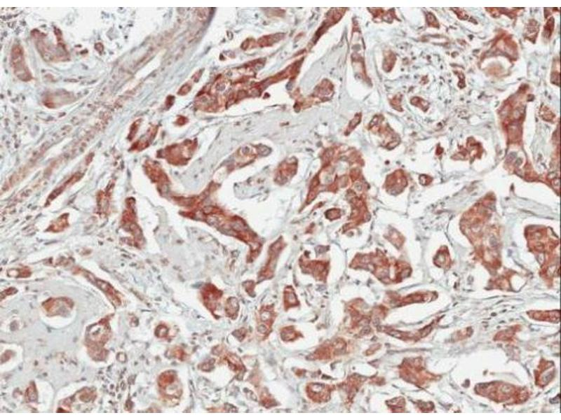 Immunohistochemistry (IHC) image for anti-Tubby Like Protein 1 (TULP1) (Center) antibody (ABIN2855741)