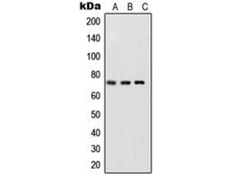 Western Blotting (WB) image for anti-Nuclear Factor-KB P65 (NFkBP65) (C-Term), (pSer468) antibody (ABIN2705044)