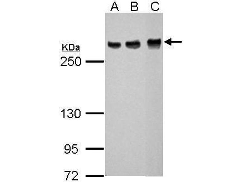 Western Blotting (WB) image for anti-ATM antibody (Ataxia Telangiectasia Mutated) (ABIN136323)