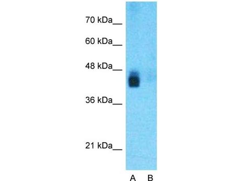 Western Blotting (WB) image for anti-beta-Site APP-Cleaving Enzyme 1 (BACE) (N-Term) antibody (ABIN2782766)