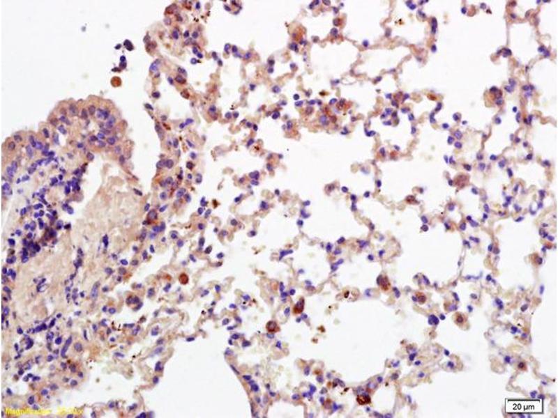 Immunohistochemistry (IHC) image for anti-CD28 (CD28) (AA 20-45) antibody (ABIN674604)