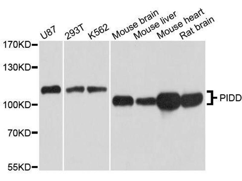 Western Blotting (WB) image for anti-P53-Induced Death Domain Protein (PIDD) antibody (ABIN5664897)