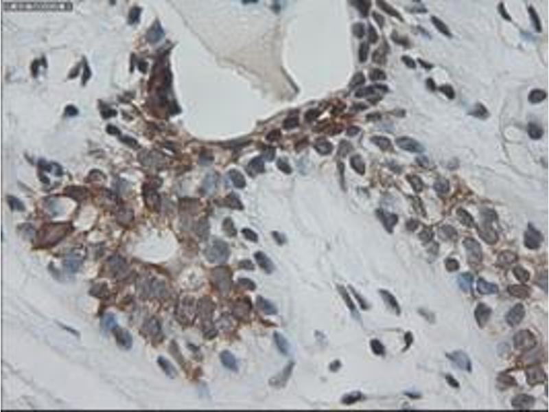 image for anti-Keratin 18 (KRT18) (AA 69-372) antibody (ABIN1491637)