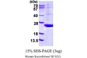 Image no. 1 for Dual Specificity Phosphatase 21 (DUSP21) (AA 1-190) (Active) protein (His tag) (ABIN1981653)