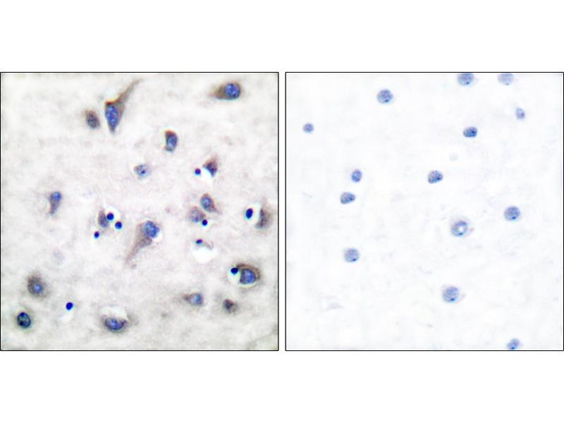Image no. 2 for anti-Protein Phosphatase 1, Regulatory (Inhibitor) Subunit 1B (PPP1R1B) (pThr34) antibody (ABIN1576020)
