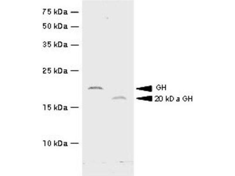 Western Blotting (WB) image for anti-Growth Hormone 1 antibody (GH1) (AA 27-217) (ABIN316076)