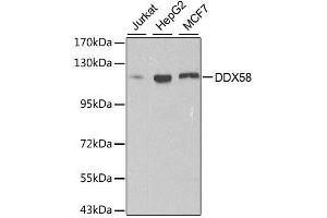 Western Blotting (WB) image for anti-DEAD (Asp-Glu-Ala-Asp) Box Polypeptide 58 (DDX58) antibody (ABIN3023649)