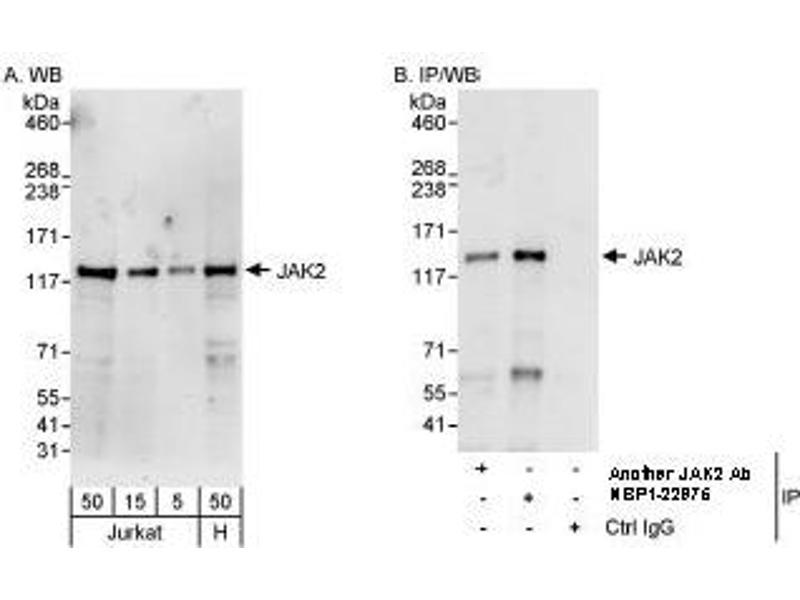 Western Blotting (WB) image for anti-Janus Kinase 2 (JAK2) (AA 1082-1132) antibody (ABIN439657)
