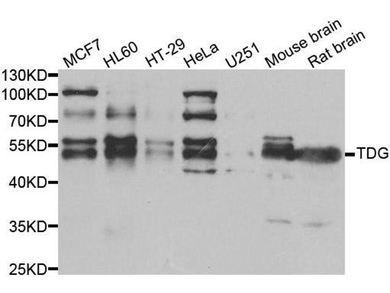 Image no. 1 for anti-Thymine-DNA Glycosylase (TDG) antibody (ABIN2560337)