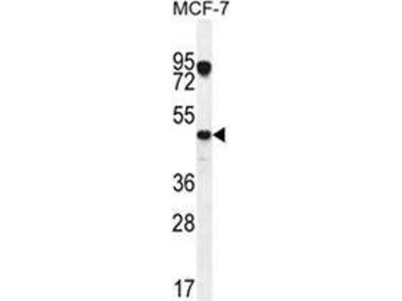 Western Blotting (WB) image for anti-Vascular Endothelial Growth Factor C (VEGFC) (AA 27-57), (N-Term) antibody (ABIN955510)