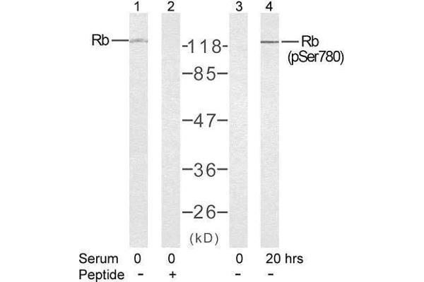 Western blot analysis of extract from K562 cells untreated or treated with 10% serum after 48 hours of starvation, using Rb (Ab-780) antibody (E021110, Lane 1 and 2) and Rb (phospho-Ser780) antibody (E011132, Lane 3 and 4).