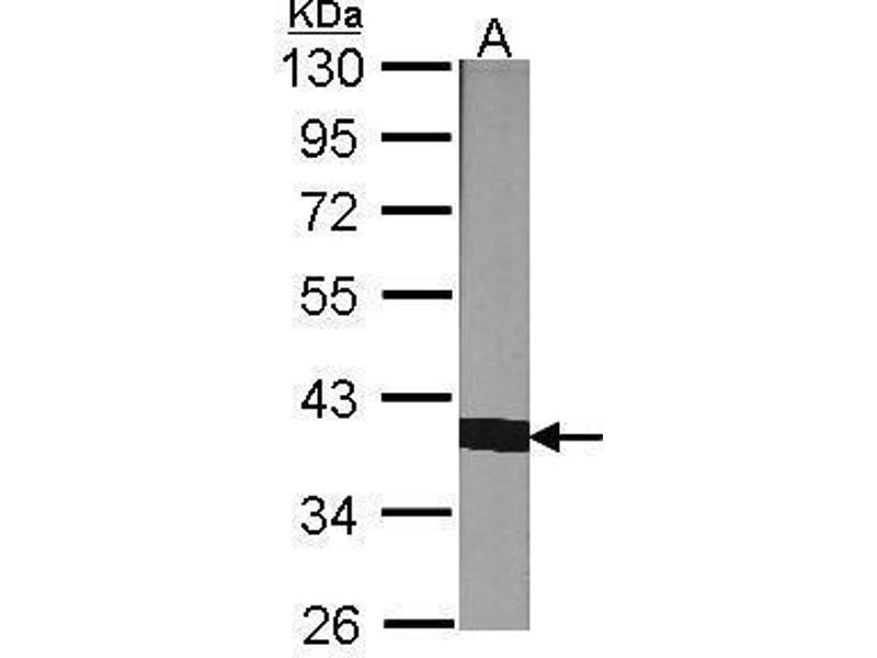 Western Blotting (WB) image for anti-Peptidylprolyl Isomerase D (PPID) (Center) antibody (ABIN2855754)