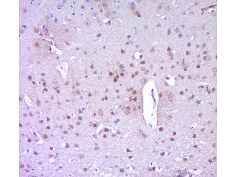 Immunohistochemistry (Paraffin-embedded Sections) (IHC (p)) image for anti-Poly (ADP-Ribose) Polymerase 1 (PARP1) (AA 200-230) antibody (ABIN677903)