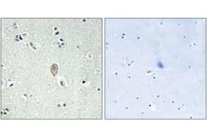 Image no. 1 for anti-Frizzled Family Receptor 5 (FZD5) (AA 31-80) antibody (ABIN1535612)